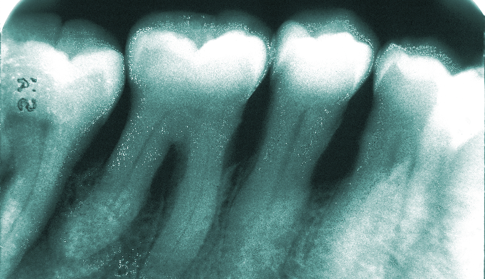 Preventing and treating periodontitis
