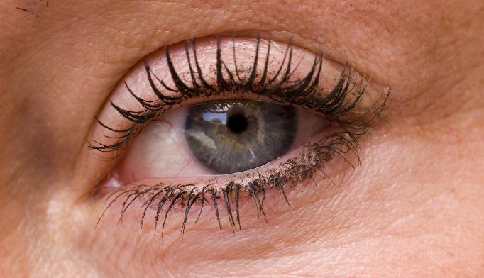 Rapidly worsening eye pain and ankylosing spondylitis