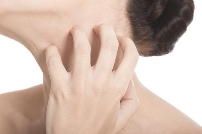 Eczema major U.S. health, cost burden