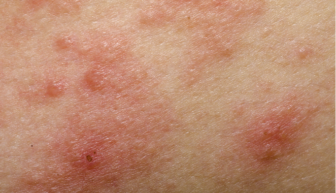 When multiple rashes complicate diagnosis