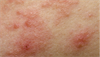 Multiple dermatologic rashes complicate psoriasis diagnosis