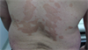 Derm Dx: Lesions on the chest and back