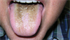 Derm Dx: Black, velvety coating of the tongue