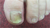 Derm Dx: Discolored toenail