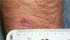 Derm Dx: Enlarging lesion on the forearm