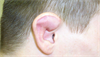 Derm Dx: Deformed ear