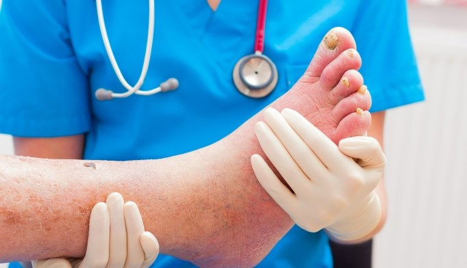 Almost 75% of cellulitis cases were misdiagnosed in the study.