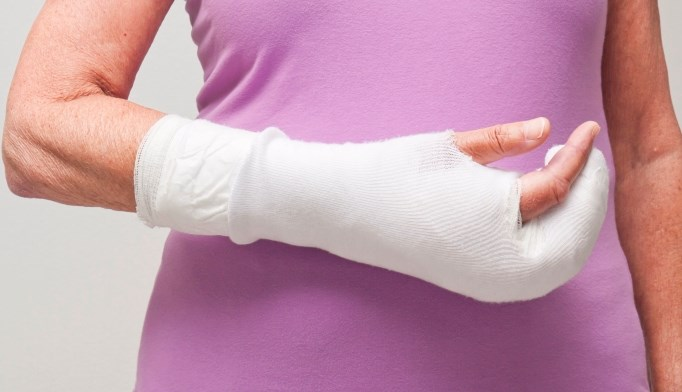 In menopausal women, SSRIs increase fracture risk