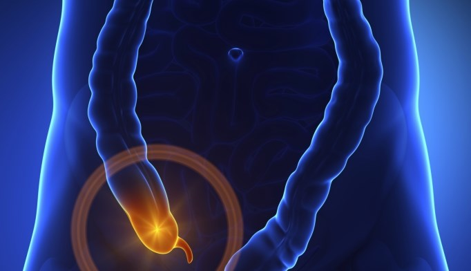 Antibiotics may be alternative to appendectomy in some patients