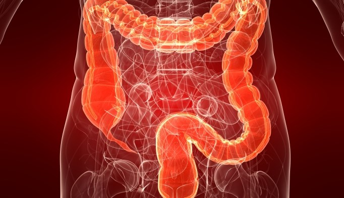 High rates of colorectal cancer in select parts of U.S.