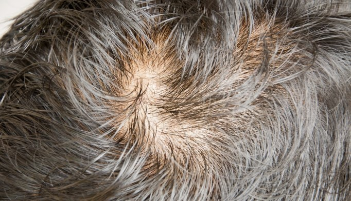 Lower zinc levels linked to more severe alopecia