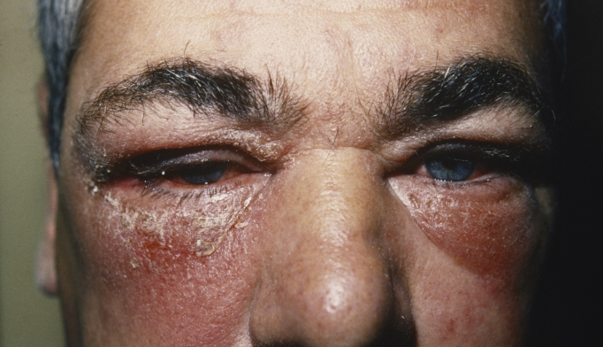 Facial edema burning eyes