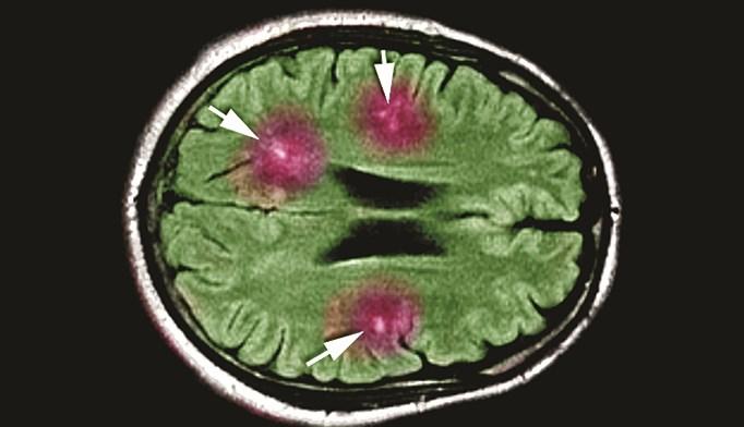 Exploring treatment options for migraine headache