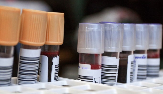 Most coagulation tests can be evaluated up to 8 hours after blood collection