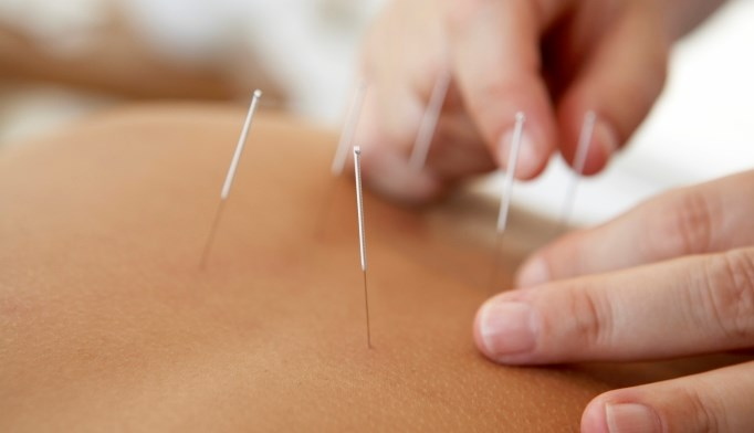 After breast cancer, acupuncture more effectively treats hot flashes