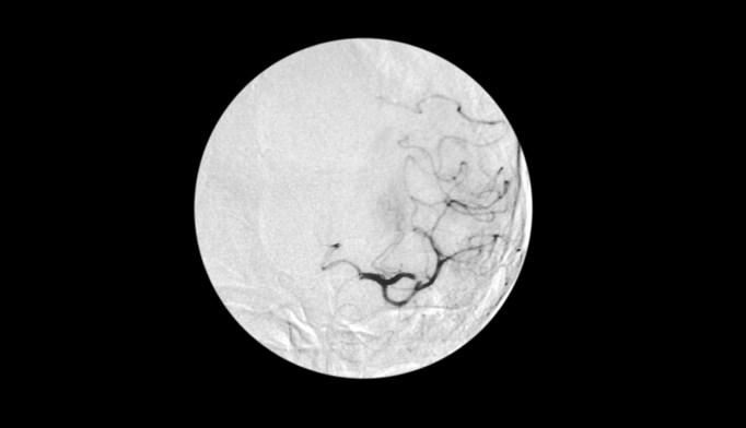 Thrombolysis 3 to 4.5 hours after stroke may increase mortality without clear benefit