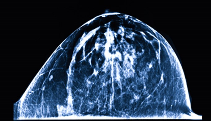 New guidelines recommend mammograms in women beginning at age 45