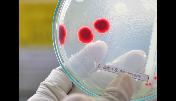 Drug-resistant E. coli infection rates increase at community hospitals
