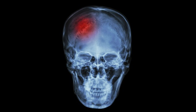 High stress jobs are linked to increased stroke risk
