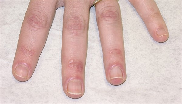 Juvenile dermatomyositis is a chronic and common inflammatory myopathy of autoimmune origin, which can affect multiple organs.