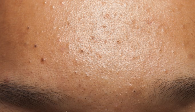 Consumption of salty foods was much higher in patients who had acne than in those without.