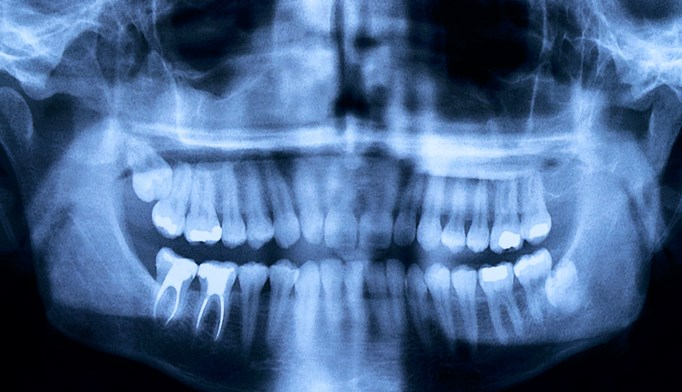 Postmenopausal women with periodontal disease have an elevated risk for breast cancer.
