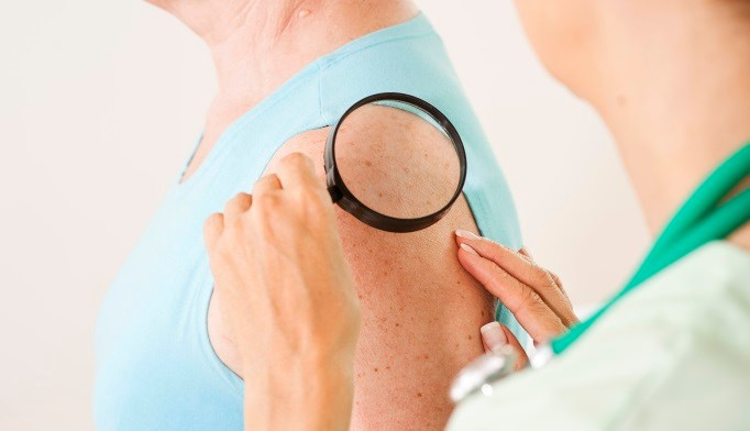 Evidence lacking to assess benefits/harm of visual skin cancer screening