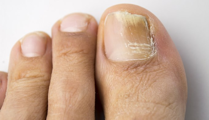 Laser therapy for onychomycosis of the toenails
