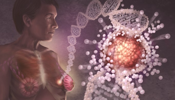 Breast cancer may be caused by a genetic mutation or a predisposed genetic link in a woman's DNA.