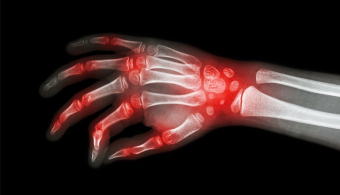 DMARDs remain first choice of therapy for rheumatoid arthritis