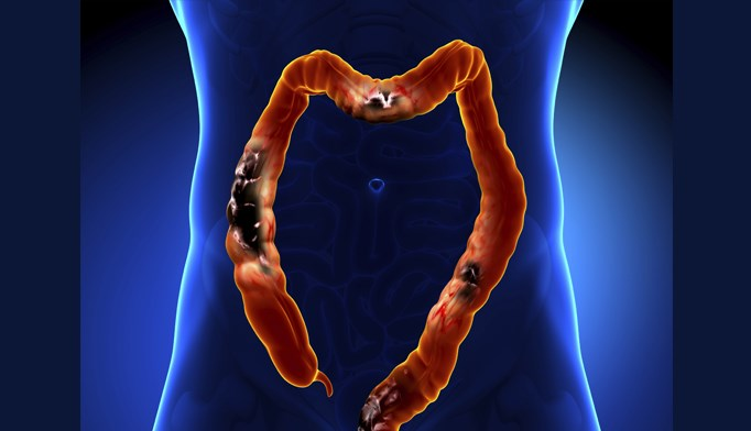 Nearly 15% of colorectal cancer patients were diagnosed before age 50.