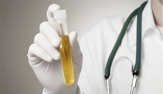 Hematuria evaluation guidelines issued by ACP