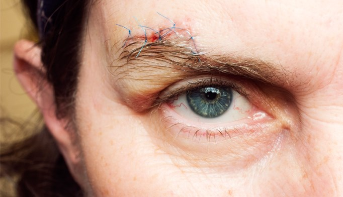 Erythromycin for facial lacerations