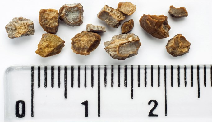 Kidney stones becoming more common among youth, women, African Americans