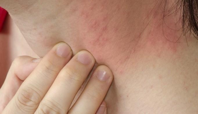Tips for avoiding allergic reactions to nickel
