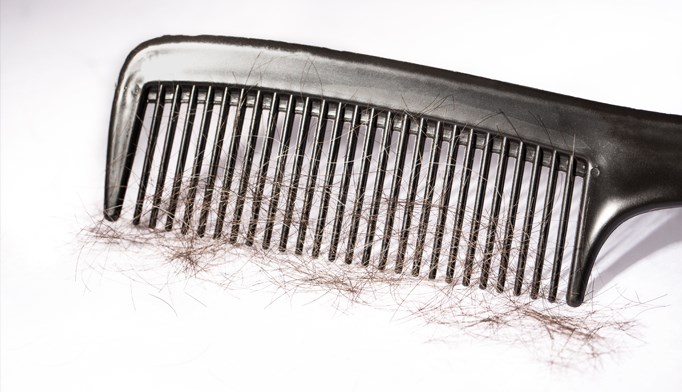 Hair loss after steroid injections
