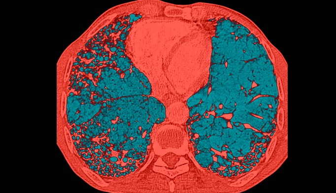 Honeycomb appearance  of the lungs caused  by idiopathic  pulmonary fibrosis.