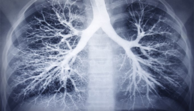 Beta-blockers may reduce COPD exacerbation risk