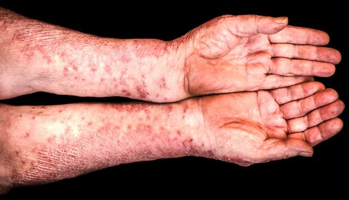 FDA approves Inflectra biosimilar for rheumatoid arthritis, psoriasis