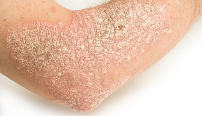 Severe psoriasis, nail pitting possible risks for development of psoriatic arthritis