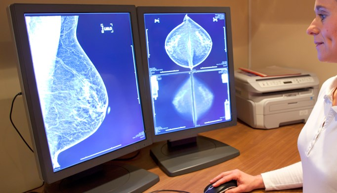 Tomosynthesis plus digital mammography screening may benefit women with heterogeneously dense breasts.