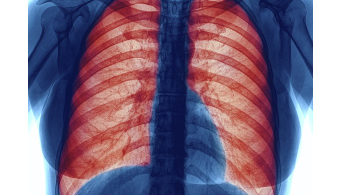 The addition of tiotropium does not reduce COPD exacerbations.
