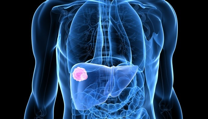 Tumor recurrence is common in patients with hepatitis C, hepatocellular carcinoma