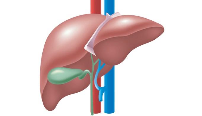At 12 months, 21.2% of patients had developed de novo gallbladder disease.