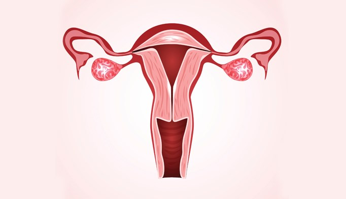 Abnormal uterine bleeding linked to hematologic malignancies