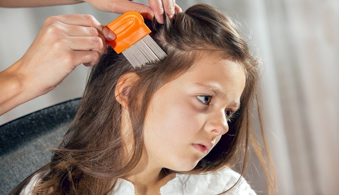 Prescription treatments are more effective in head lice treatment