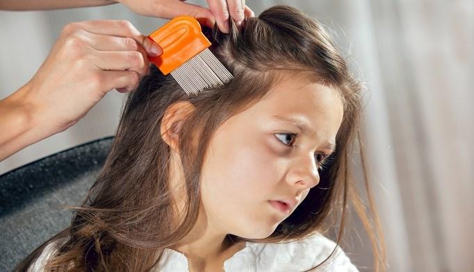 Prescription treatments are more effective in head lice treatment