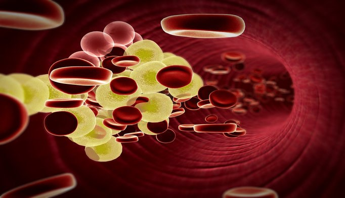 Alternative non-statin therapies effectively lower LDL cholesterol