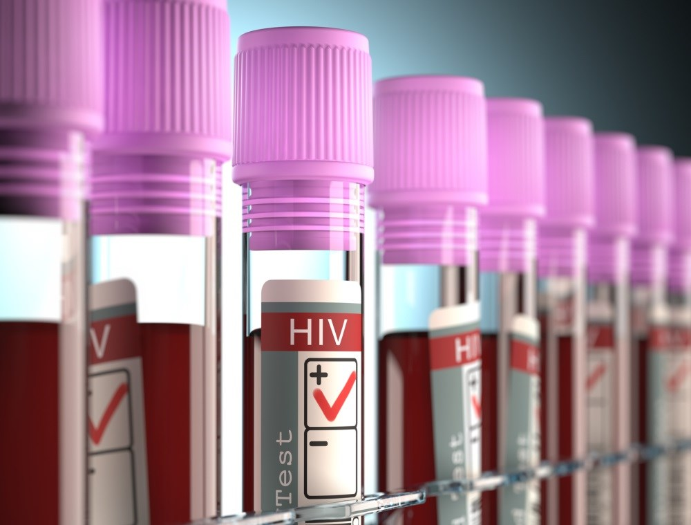 HIV's newly traced origins in US discredit Patient Zero theory