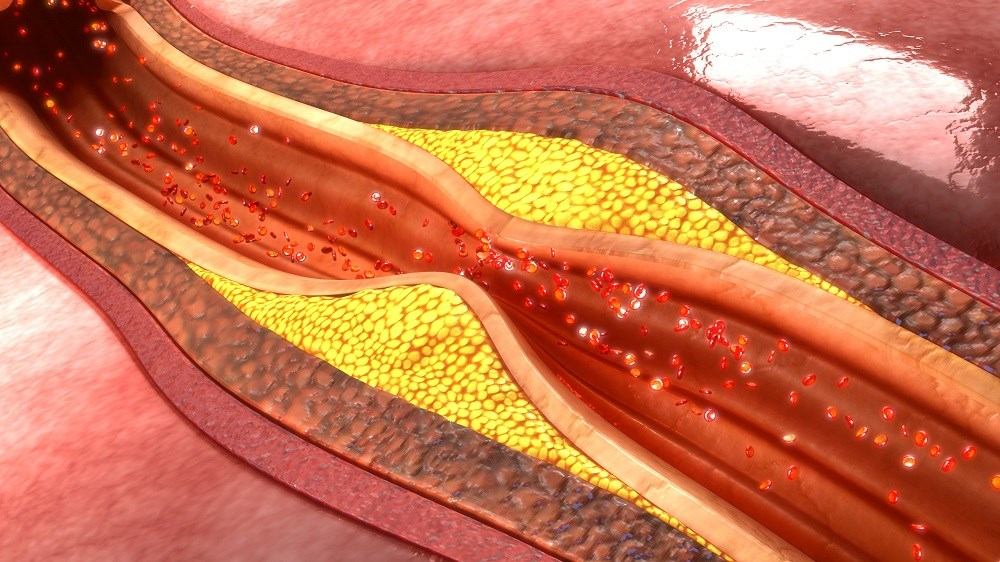 Combining FFR with imaging techniques may be required to guide the treatment strategy in patients with high-risk, fast-progressing atherosclerosis.